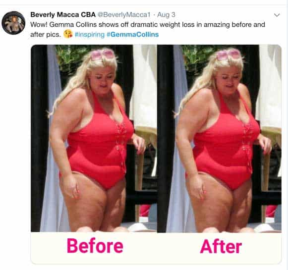 Gemma Collins before and after