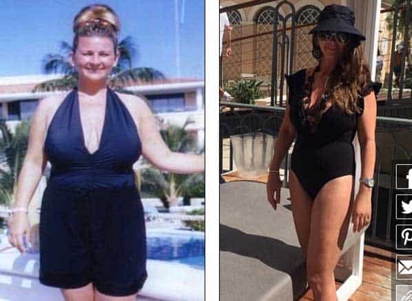 Glasgow based Jane McGowen before and after photos